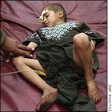 One of the children who were wounded by the americans' precious military. The Few. The Proud. The Incompetent.